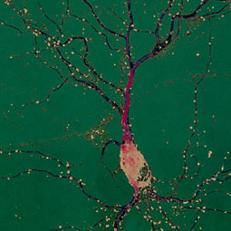 Single neuron from a rat. Photomicrograph courtesy Gary Wayman.